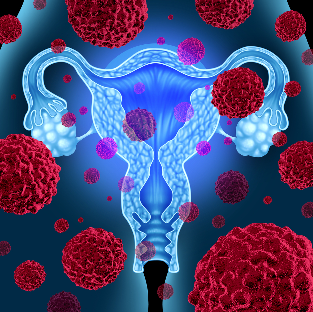 Obamacare Cited As Potential Factor In Fewer Infertility Cases From Cervical Cancer