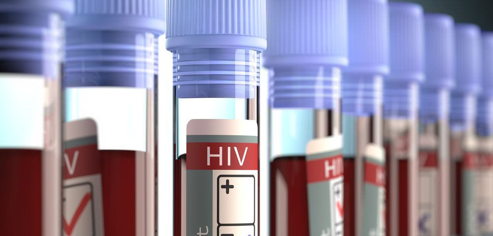 HIV Infection Considerably Hurts Chances of Surviving Cervical Cancer, Study Finds
